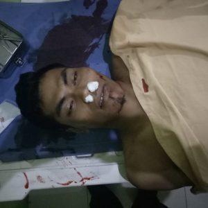 Foto: Korban dan kenderaaannya pasca kecelakaan.